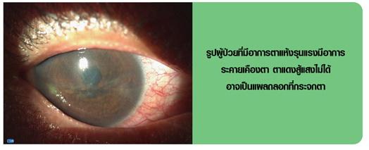ตาแห้ง Dry eye