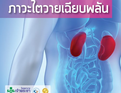 ภาวะไตวายเฉียบพลัน  (Acute kidney injury)