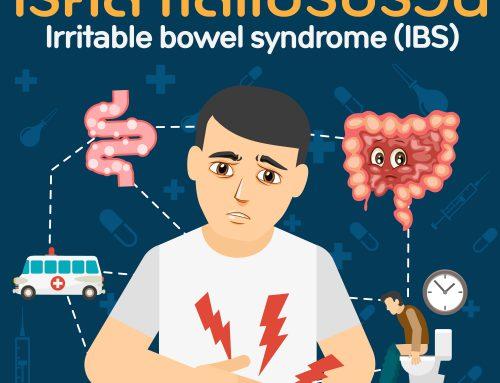 โรคลำไส้แปรปรวน (IBS)