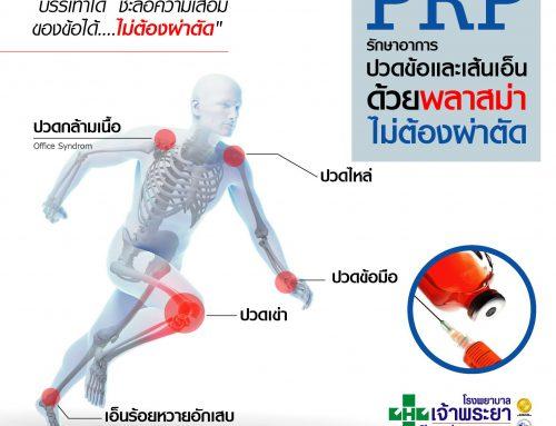 PRP รักษาอาการปวดข้อและเส้นเอ็นด้วยพลาสม่า ไม่ต้องผ่าตัด